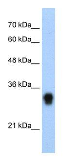 Western blot - RPL8 antibody (ab55952)