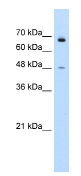 Western blot - KLHL25 antibody (ab55953)