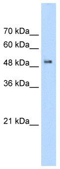 Western blot - PACSIN1 antibody (ab55959)