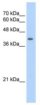 Western blot - UROD antibody (ab55962)