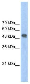 Western blot - FECH antibody (ab55965)