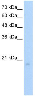 Western blot - RGS8 antibody (ab56052)