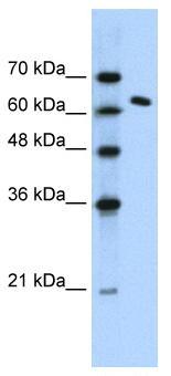Western blot - SUPT16H antibody (ab56212)