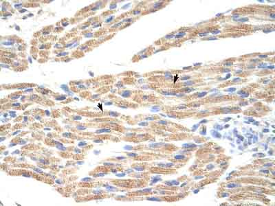 Immunohistochemistry (Formalin/PFA-fixed paraffin-embedded sections) - Anti-TNRC5 antibody (ab56238)