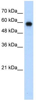 Western blot - SMARCD2 antibody (ab56241)
