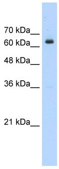Western blot - BTBD14A antibody (ab56255)
