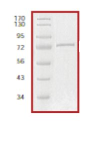 SDS-PAGE - p300 protein (Tagged) (ab56274)