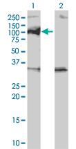 Western blot - PPM1D antibody (ab56332)
