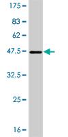 Western blot - Plakophilin 4  antibody (ab56343)