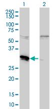Western blot - MLF2 antibody (ab56378)