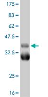 Western blot - TBX18 antibody (ab56423)
