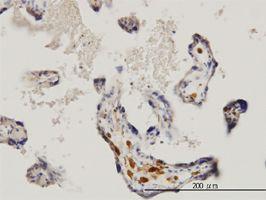 IHC-P - MNK1 antibody (ab56425)