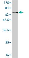 Western blot - Genethonin 1 antibody (ab56457)
