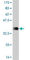 Western blot - ARHGEF1 antibody (ab56462)