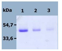 SDS-PAGE - DR4 + Fc Fragment protein (ab56518)