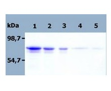 SDS-PAGE - PAG protein (His tag) (ab56521)