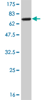Western blot - NEIL2 antibody (ab56577)
