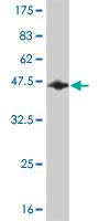 Western blot - RBM5  antibody (ab56598)