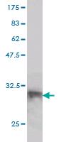 Western blot - LANCL1 antibody (ab56624)
