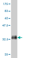 Western blot - ABCA10 antibody (ab56663)