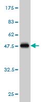 Western blot - CIB1 antibody (ab56664)