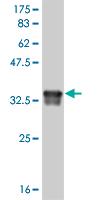 Western blot - Deformed Epidermal Autoregulatory Factor 1  antibody (ab56668)