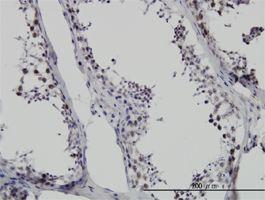 IHC-P - SMNDC1 antibody (ab56693)