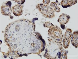 IHC-P - YAP1 antibody (ab56702)