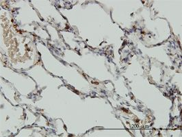 Immunohistochemistry (Formalin/PFA-fixed paraffin-embedded sections) - Coronin 1a antibody (ab56820)