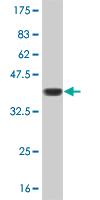 Western blot - LBX1 antibody (ab56840)