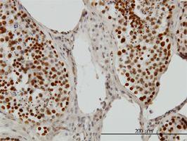 IHC-P - PSIP1 antibody (ab56841)