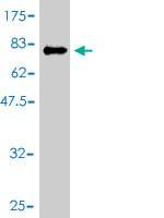 Western blot - IKZF3 antibody (ab56867)