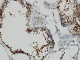 IHC-P - POMZP3 antibody (ab56903)