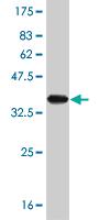 Western blot - TRIM32 antibody (ab56907)