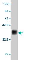 Western blot - ESM1 antibody (ab56914)