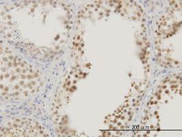 IHC-P - RASSF8 antibody (ab56921)