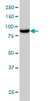 Western blot - MAN1B1 antibody (ab56931)
