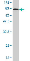Western blot - NT5C2 antibody (ab56938)