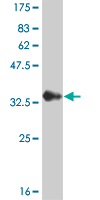 Western blot - Calcium binding protein P22 antibody (ab56953)