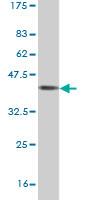 Western blot - USP39 antibody (ab56985)