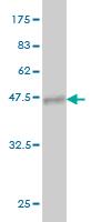 Western blot - PIP5KI gamma  antibody (ab57071)