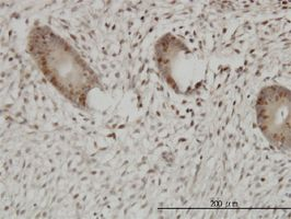 Immunohistochemistry (Formalin/PFA-fixed paraffin-embedded sections) - UHRF1 antibody (ab57083)