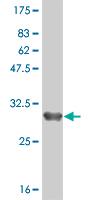 Western blot - ZDHHC8 antibody (ab57088)