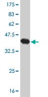 Western blot - RAX antibody (ab57181)