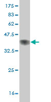 Western blot - HUNK antibody (ab57192)