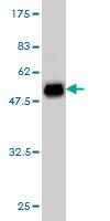 Western blot - CSEN antibody (ab57203)