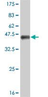 Western blot - FOXP1 antibody (ab57216)