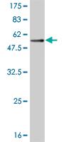 Western blot - TREM1 antibody (ab57260)
