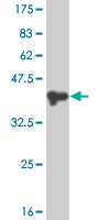 Western blot - PMS1 antibody (ab57279)