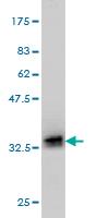 Western blot - POMC antibody (ab57307)